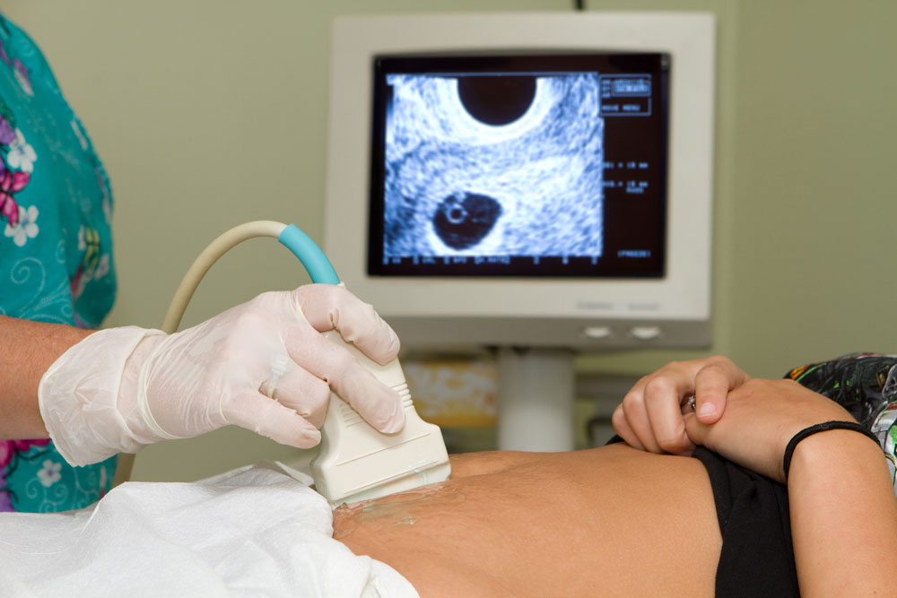 pregnancy ultrasound examination